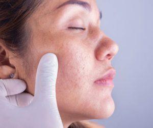 Dermatology (Skin Care) Hospital