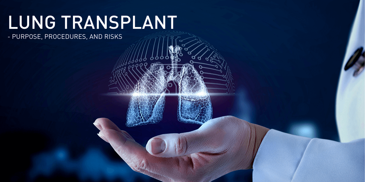 Things To Know About Lung Transplants